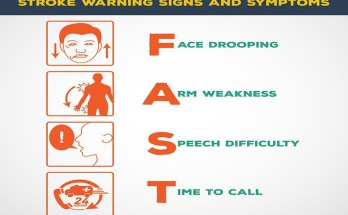 12 Symptoms Indicate You Had A Silent Stroke