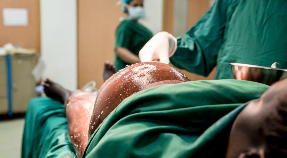 belle photo de naissance par césarienne