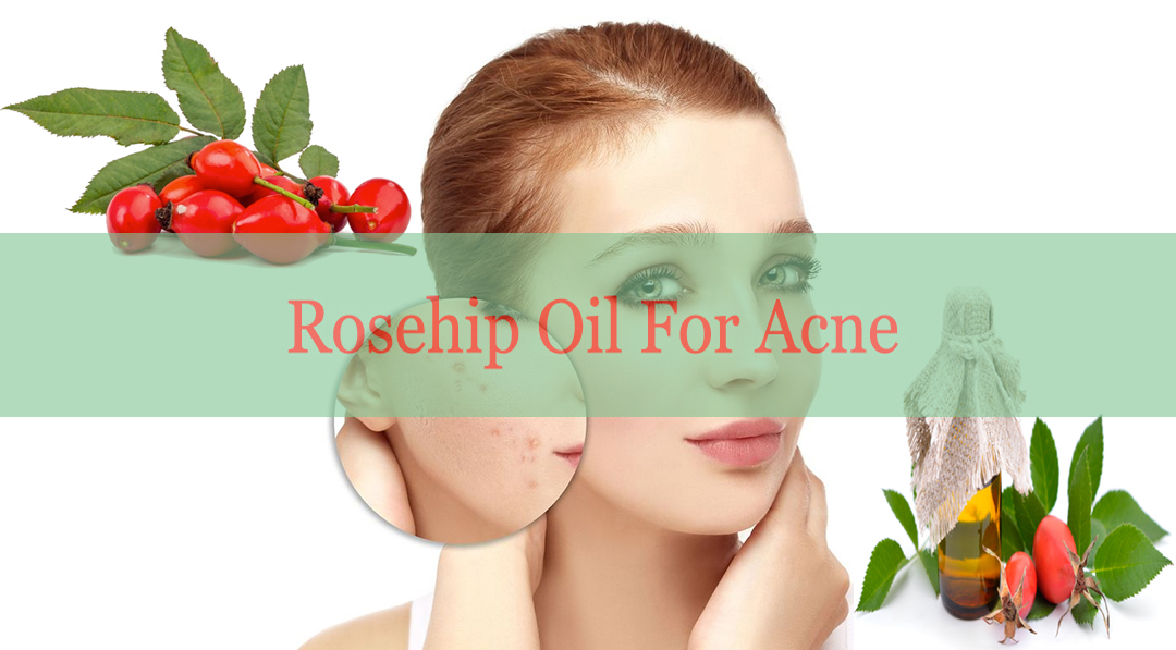 Rosehip Oil Acne
