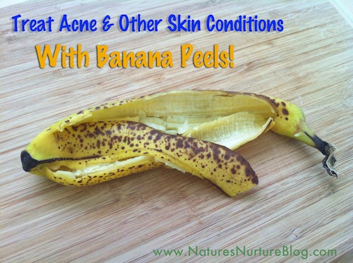 treat acne and skin conditions with banana peels