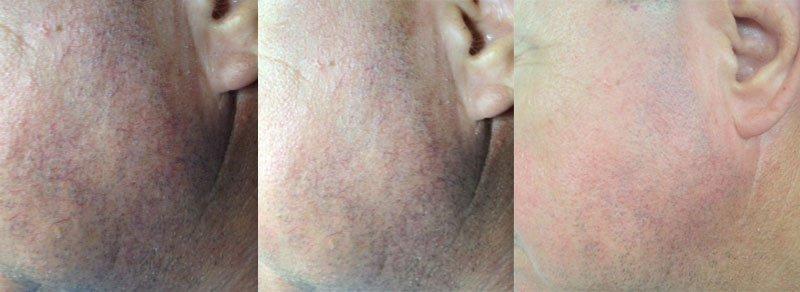 Rosacea kezelés előtt és rosacea kezelés után