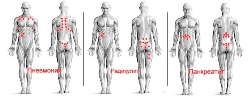 Fizikai gyakorlatok a prosztatitis kezelésében