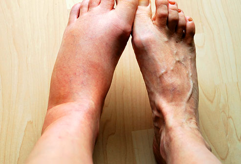 inflammation of one foot