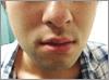 1 2 - ひげ脱毛の体験での口コミ情報6