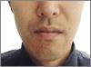 100 1 - ひげ脱毛の体験での口コミ情報1