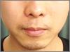 103 - ひげ脱毛の体験での口コミ情報2