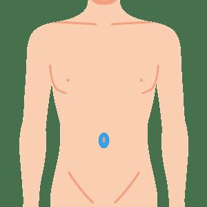 L body heso - 学割ボディ脱毛 4部位セット