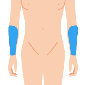 L body udeshita - メンズ全身 8部位脱毛 回数券 (4回)
