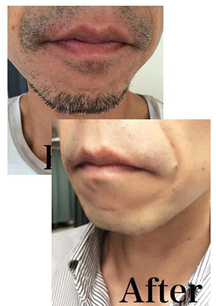 2 - メンズ脱毛芸能人が通う男性脱毛【NAX】