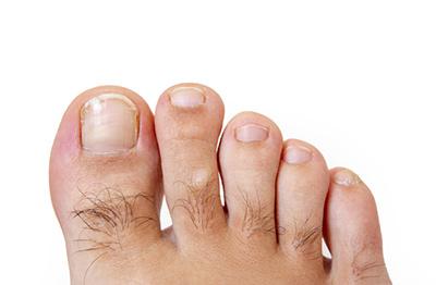 .jpg?fit=400%2C262&ssl=1 - 両足の指脱毛