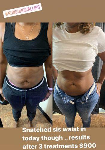 Cryo Skin Slimming Package (3 treatments)