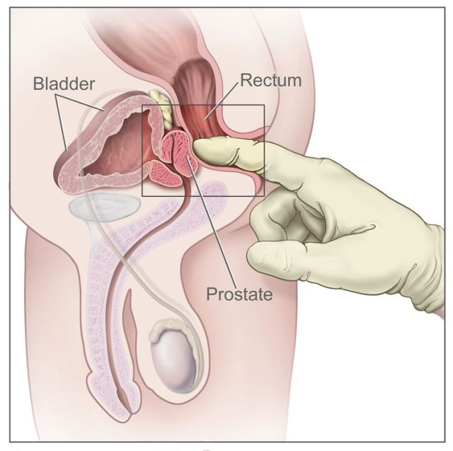 Digital rectal exam; drawing shows a side view of the male reproductive anatomy and the urinary anatomy, including the prostate, rectum, and bladder. Also shown is a gloved, lubricated finger inserted into the rectum to feel the rectum, anus, and prostate.