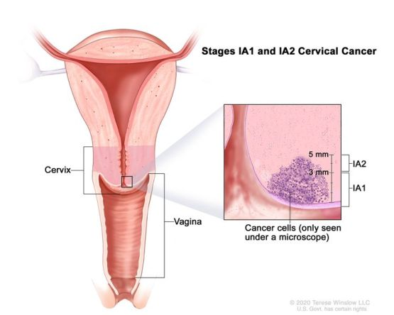 Stage IA1 and IA2 cervical cancer; drawing shows a cross-section of the cervix and vagina. An inset shows cancer cells in the cervix that can only be seen under a microscope. The cancer in stage IA1 is not more than 3 mm deep. The cancer in stage IA2 is more than 3 but not more than 5 mm deep.