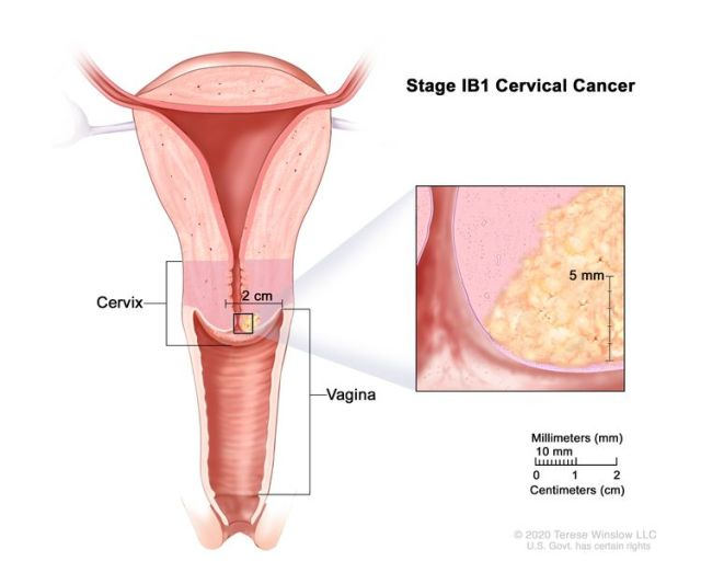 Stage IB1 cervical cancer; drawing shows a cross-section of the cervix and vagina and cancer in the cervix that is smaller than 2 cm. An inset shows cancer that is more than 5 mm deep. Also shown is a 2-cm scale that shows 10 mm is equal to 1 cm.