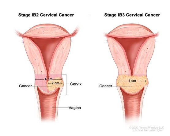 Stage IB2 and IB3 cervical cancer; drawing shows two cross-sections of the cervix and vagina. The drawing on the left shows stage IB2 cancer in the cervix that is larger than 2 cm but not larger than 4 cm. The drawing on the right shows stage IB3 cancer in the cervix that is larger than 4 cm.