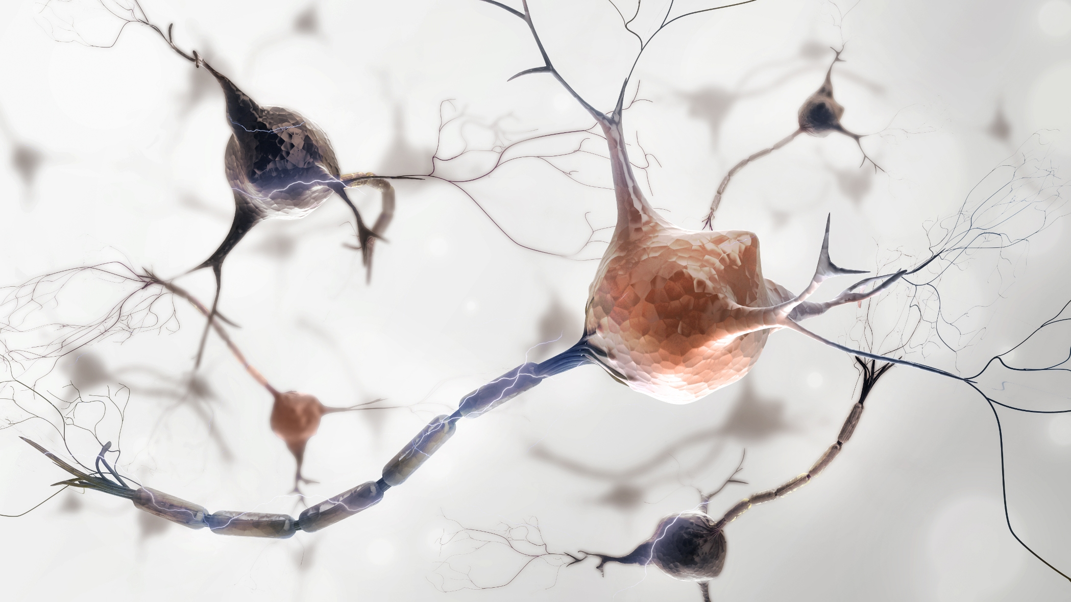 Diagnostics and therapies for neurodegenerative diseases