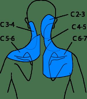 椎間関節関連痛