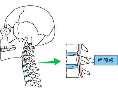 頚椎椎間板