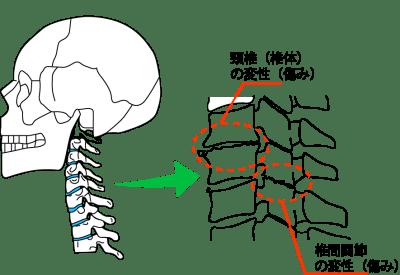 「椎間関節 5番6番」の画像検索結果