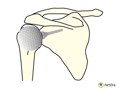 肩関節ゆるい肩甲骨1