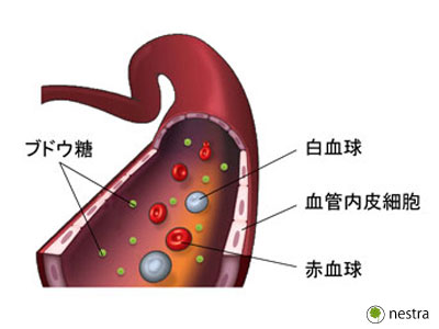 高血圧予防体操血管