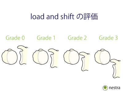 肩関節ゆるい-ロードアンドシフト図