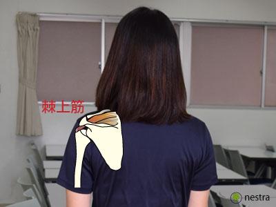 肩インピンジメント症候群棘上筋