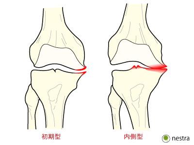 膝OA分類1
