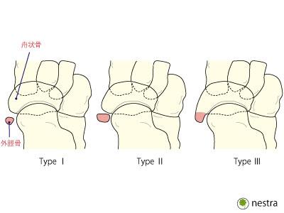 外脛骨分類