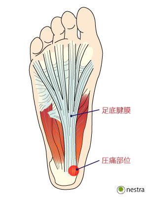 足裏圧痛2