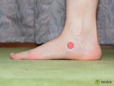足の裏が痛い扁平足2