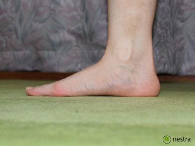 外反母趾原因扁平足