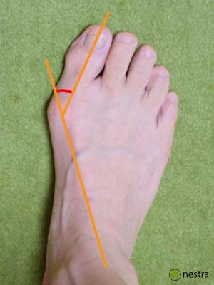 外反母趾治し方角度2