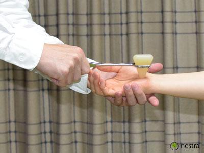 手根管症候群検査チネルサイン1