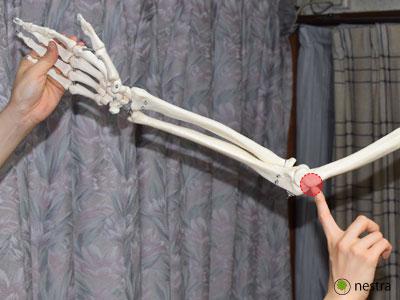 肘部管症候群-肘部神経溝_模型1