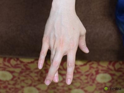 肘部管症候群 クロスフィンガーテスト1