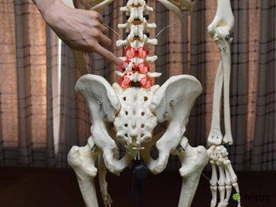 椎間関節性腰痛-椎間関節1