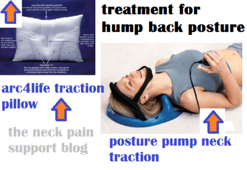 rid of the hump on my neck neck pain
