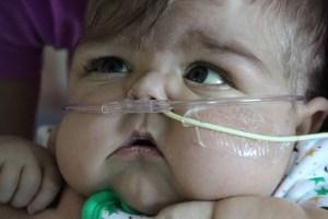 Miracle Milk™ via feeding tube
