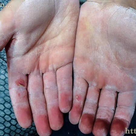 My hands after