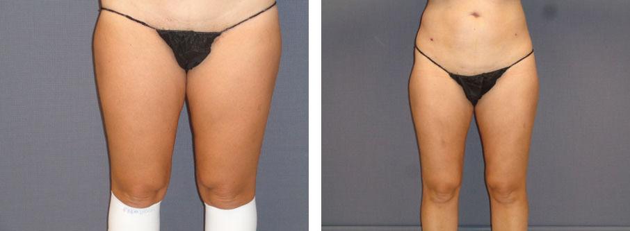 Female Inner Thighs