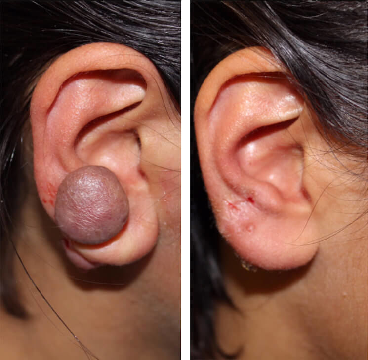 Keloid (abnormal scarring) Removal