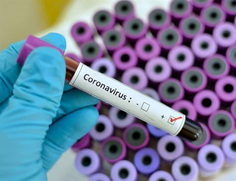 Sobem para 28 os casos confirmados do novo coronavírus em Pernambuco