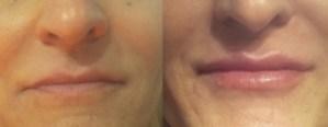χείλη, όγκος,σαρκώδη χειλάκια