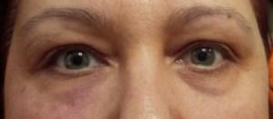 υαλουρονικό οξύ στα μάτια για μαύρους κύκλους