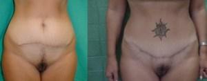 abdominoplasty, surgery in greece