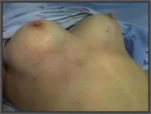 αυξητική μαστού,μεγέθυνση στήθους,σιλικόνη, μαστοπλαστική