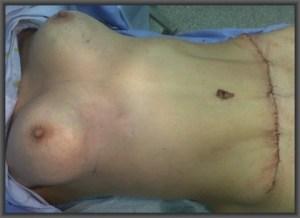 κοιλιοπλαστική και αυξητική μαστού με μία τομή