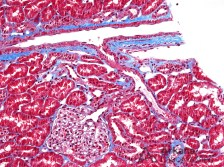 Normal Renal Cortex on Trichrome
