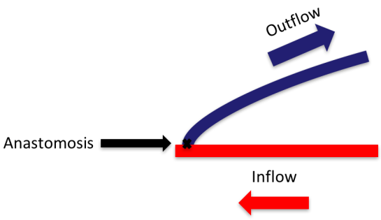 Arteriovenous fistula (AVF)